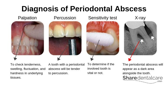 Diagnosis of Periodontal Abscess