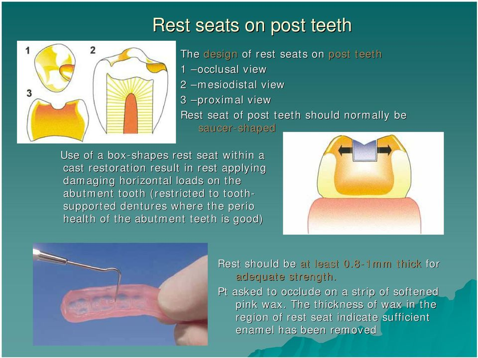 view 2 mesiodistal view 3 proximal view Rest seat of post teeth should normally be saucer-shaped shaped Rest should be at least 0.