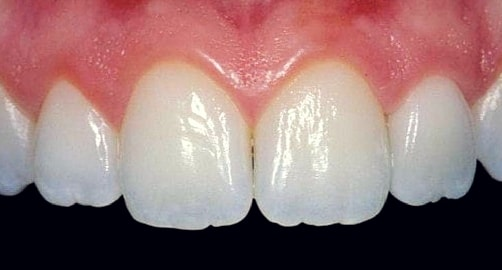 all ceramic crowns upper incisors