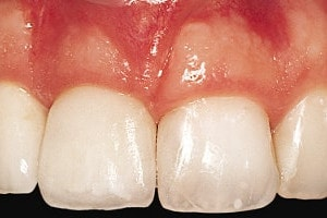 full porcelain crown on the right upper incisor