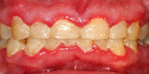 gingivitis caused by the accumulation of bacterial plaque