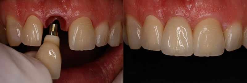 implant supported crown before and after