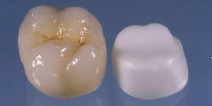 porcelain crown with zirconia substructure