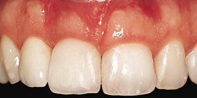 porcelain crowns on the 2 central incisors