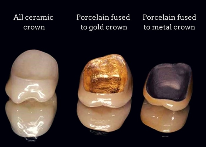 types of porcelain crowns