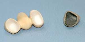 zirconia against metal base restorations