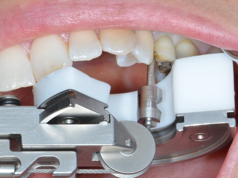 This Innovative Tool Could be the Answer to Pain-Free Tooth Extractions