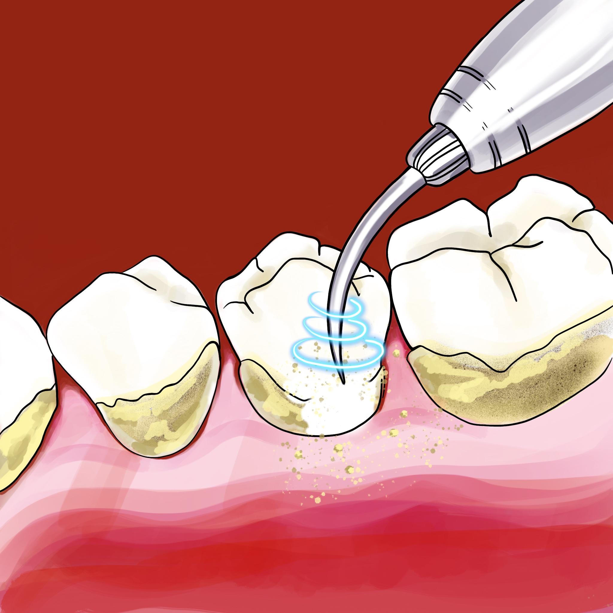 Как делают ультразвуковую чистку зубов?