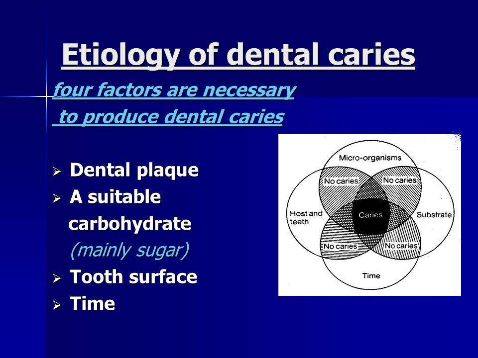 Etiology of dental caries