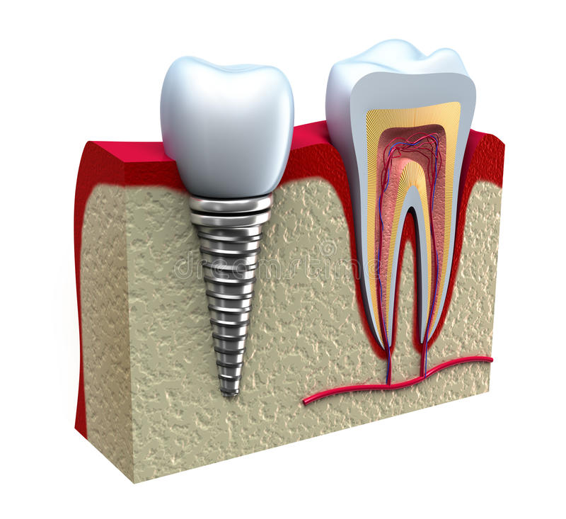 Anatomy of healthy teeth and dental implant stock illustration