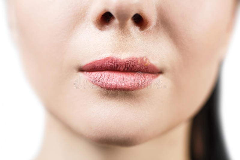 Beautiful lips infected herpes virus stock photography
