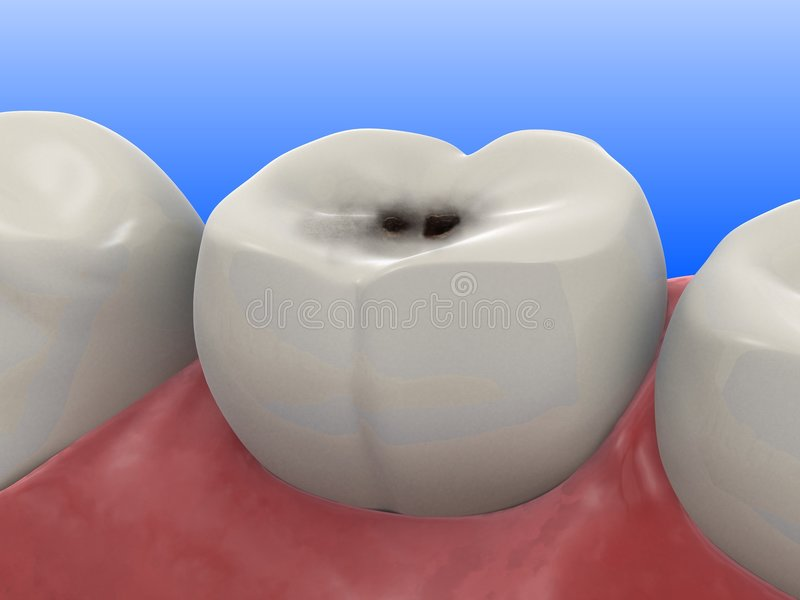 Caries. 3d rendered illustration of a tooth with caries stock illustration