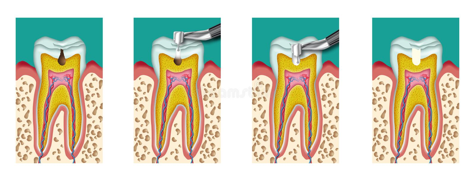 Caries. Dental caries dentistry intervention with drill four steps stock illustration