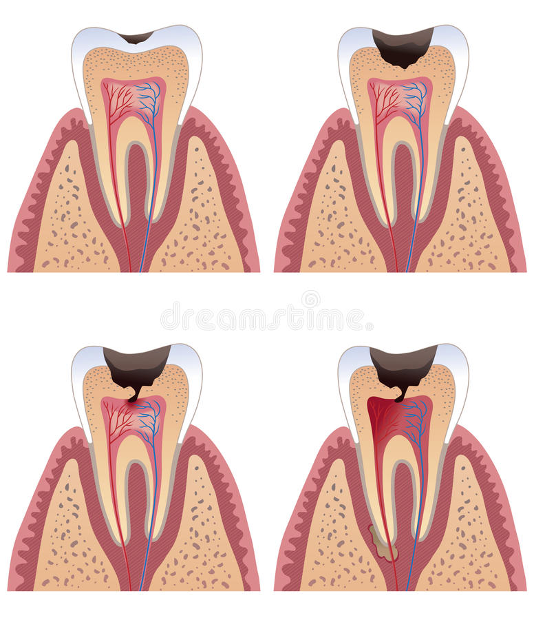 Caries stages. Diagram of tooth with caries stages royalty free illustration