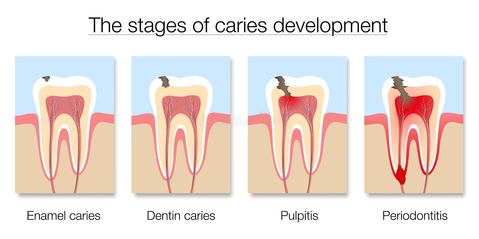 Caries Stages Development Tooth Decay Cross Sections vector illustration