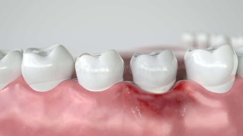Caries in three stages - Stage 1 Gingivitis - 3D Rendering. Caries in three stages - Stage 1 Gingivitis -- 3D Rendering royalty free illustration