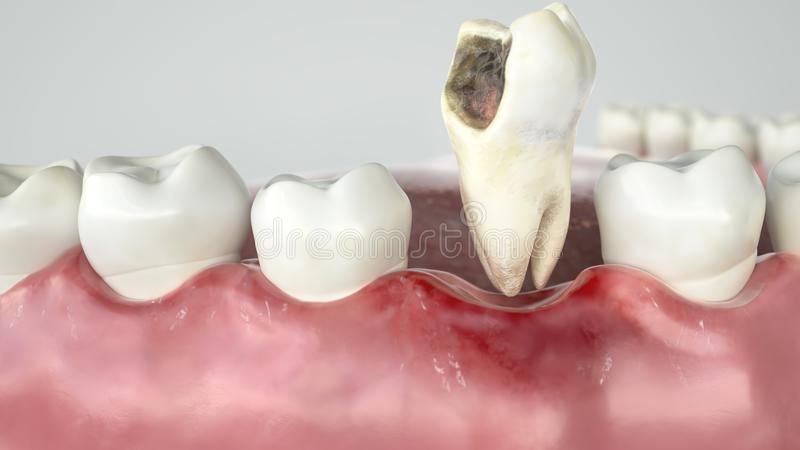 Caries in three stages - Stage 3 tooth extraction - 3D Rendering. Caries in three stages - Stage 3 tooth extraction -- 3D Rendering stock illustration