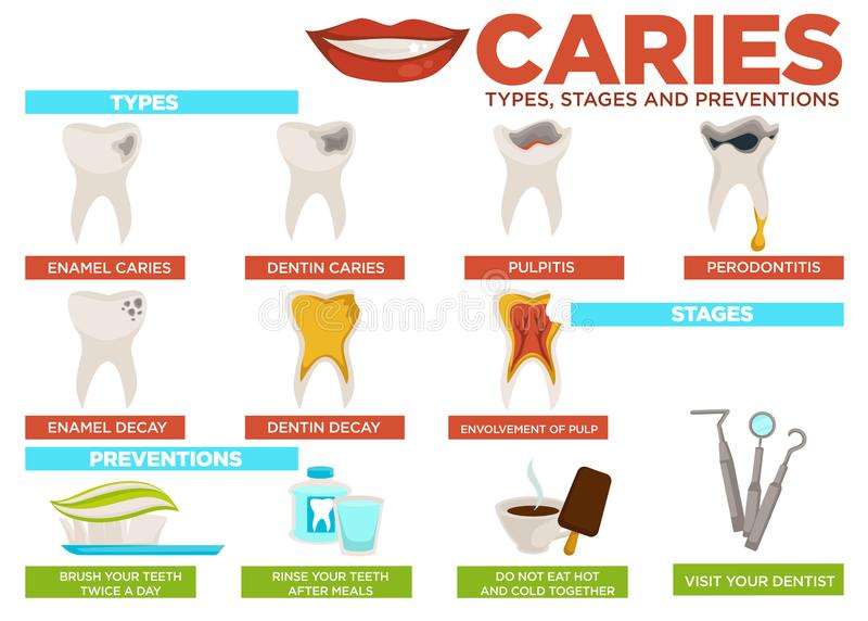 Caries types stages and prevention poster with text vector stock illustration