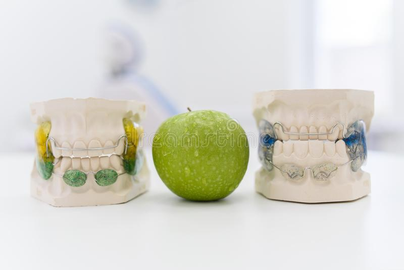 Ceramic jaws with a clasp lie with an apple on the table stock image