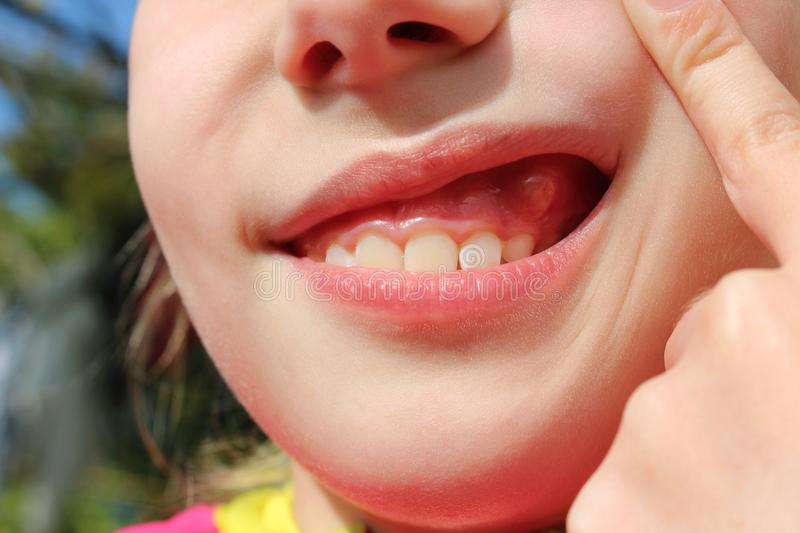 Close up  swelling on gums child. Close up  swelling on gums the child stock photo