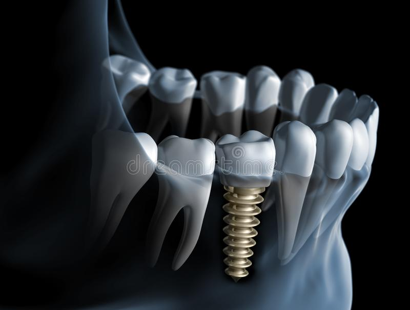 Closeup of dental implant in jaw. A row of teeth with a crown and a metal dental implant in jaw against dark backdrop vector illustration