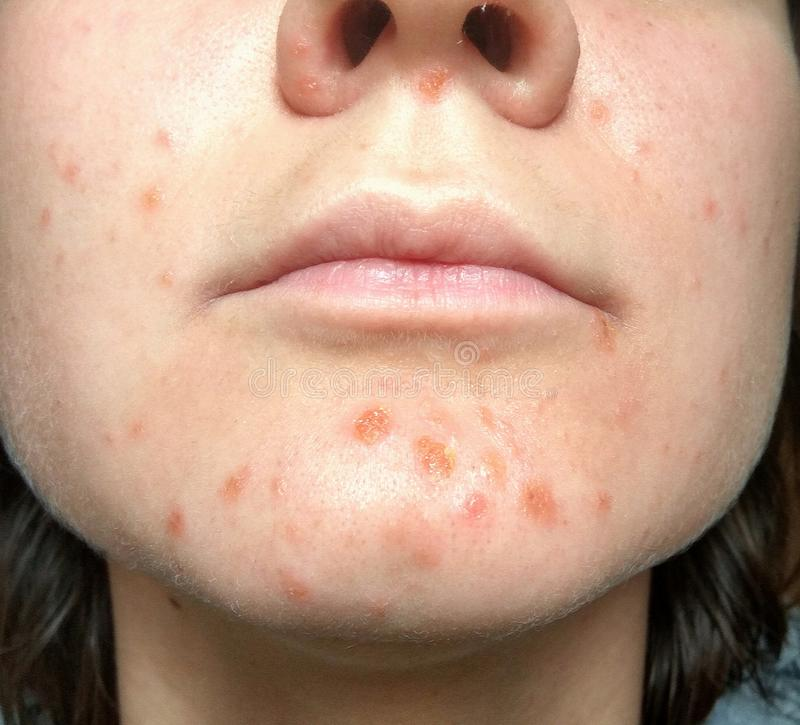Coxsackie virus rash face. Coxsackievirus symptom of hand, foot and mouth disease painful rash blisters in the mouth stock images