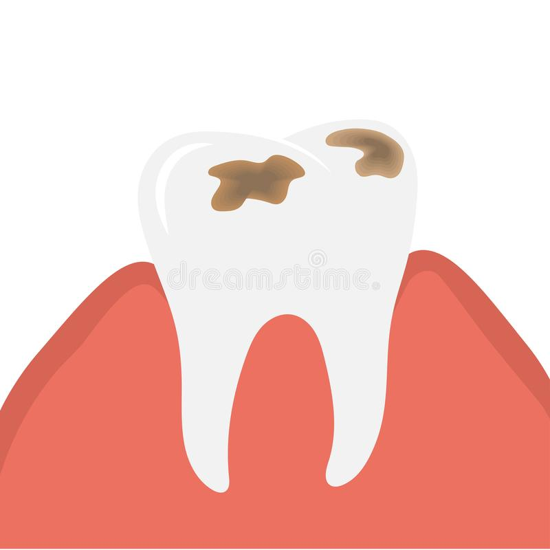 Decay and destroy tooth or dental caries. Decay and destroy tooth. Stinky tooth with caries. Vector Illustration vector illustration