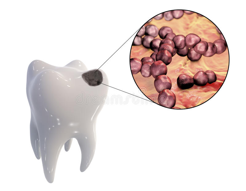 Dental caries and close-up view of microbes which cause caries. Tooth with dental caries and close-up view of microbes which cause caries Streptococcus mutans vector illustration