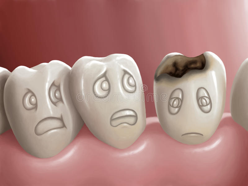 Dental caries. Illustration - Digital painting - Hand drawn vector illustration