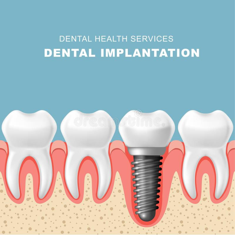 Dental implantation - row of teeth, gum with implant. Dental implantation - row of teeth in gum with implant stock illustration