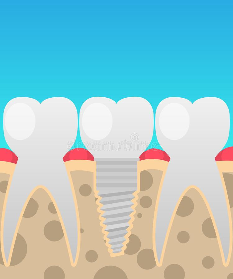 Dental implants, tooth replacement, vector illustration in a cartoon flat style royalty free illustration