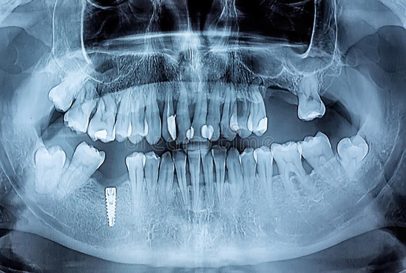 Dental x-ray with periodontitis problems, decayed teeth and implant. Sample royalty free stock image