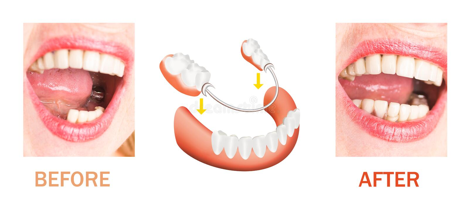 Dental rehabilitation with upper and lower prosthesis, before and after treatment stock photos