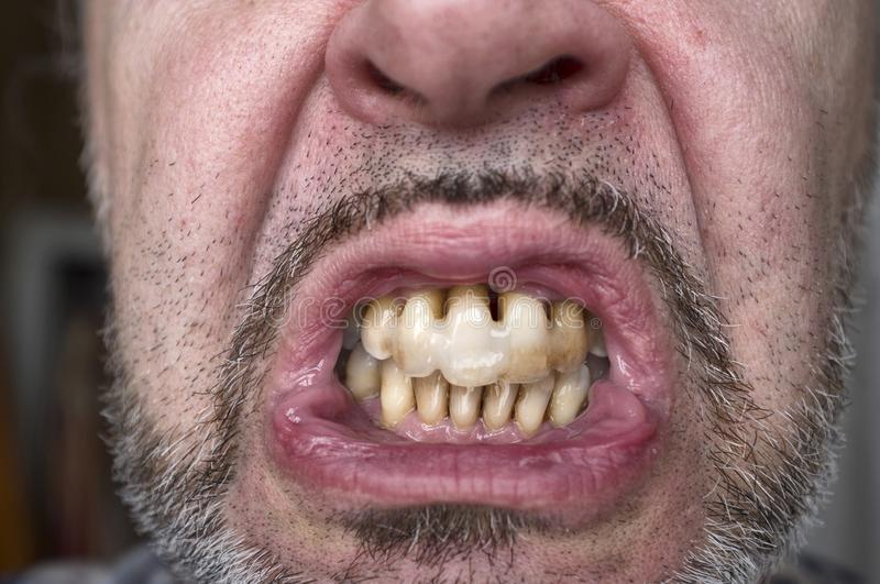 Teeth affected by periodontitis. Destructive periodontitis in a middle-aged man stock images