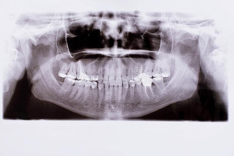 Detail of panoramic facial x-ray image royalty free stock image