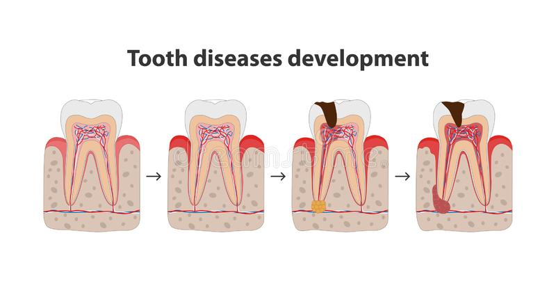 Development of tooth disease medical poster illustration in flat design. Teeth in gum icons isolated on white background stock illustration