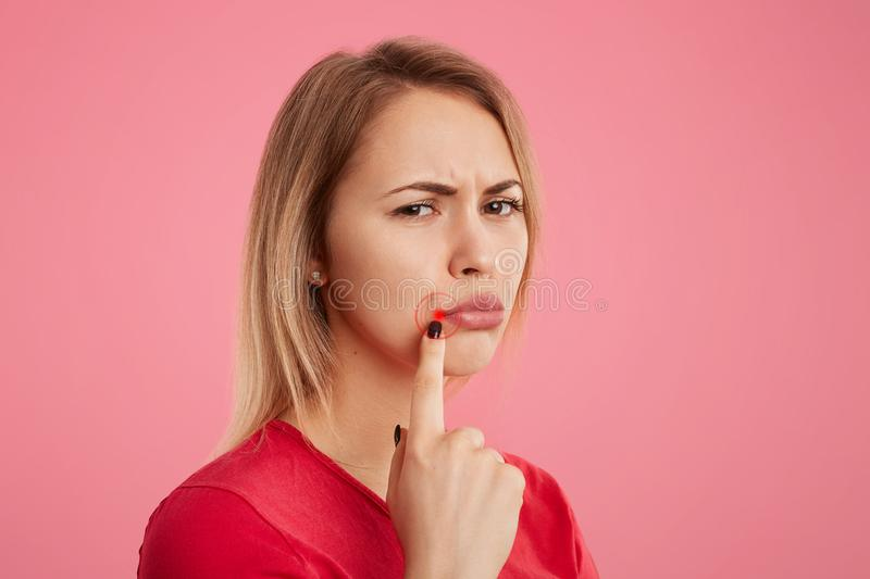 Discontent young beautiful female with unhappy look, has oral herpes, indicates at wound near lips, stands sideways against pink b royalty free stock images