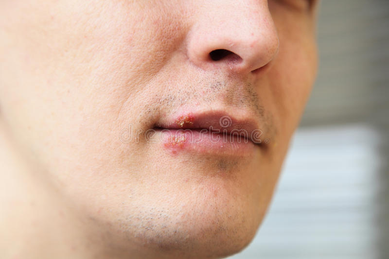 Herpes on the lips royalty free stock images