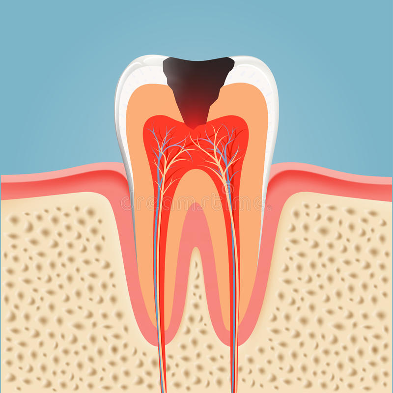 Human tooth with caries. Stock. Illustration stock illustration