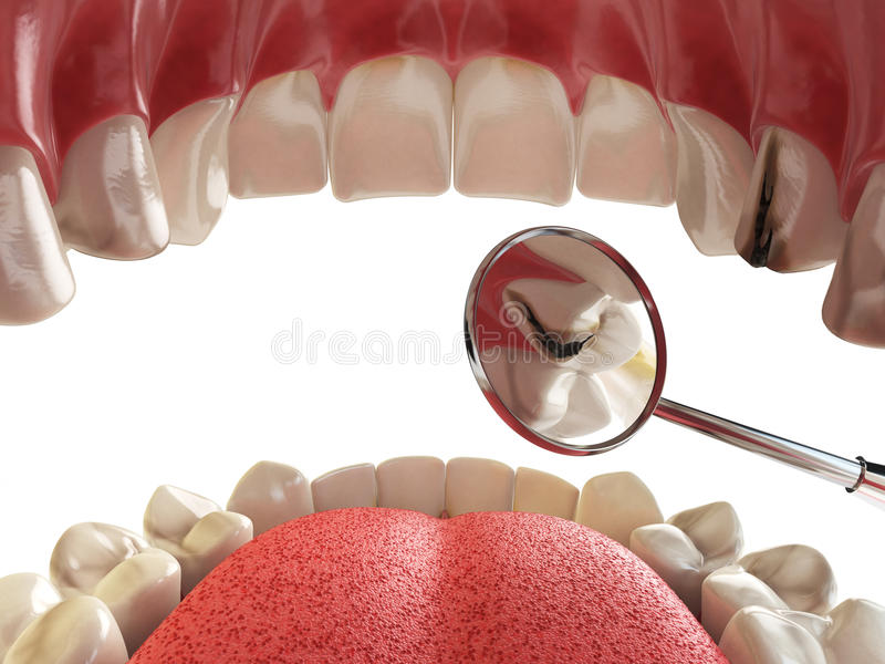 Human tooth with cariesand hole and tools. Dental searching concept. Teeth or dentures. stock illustration