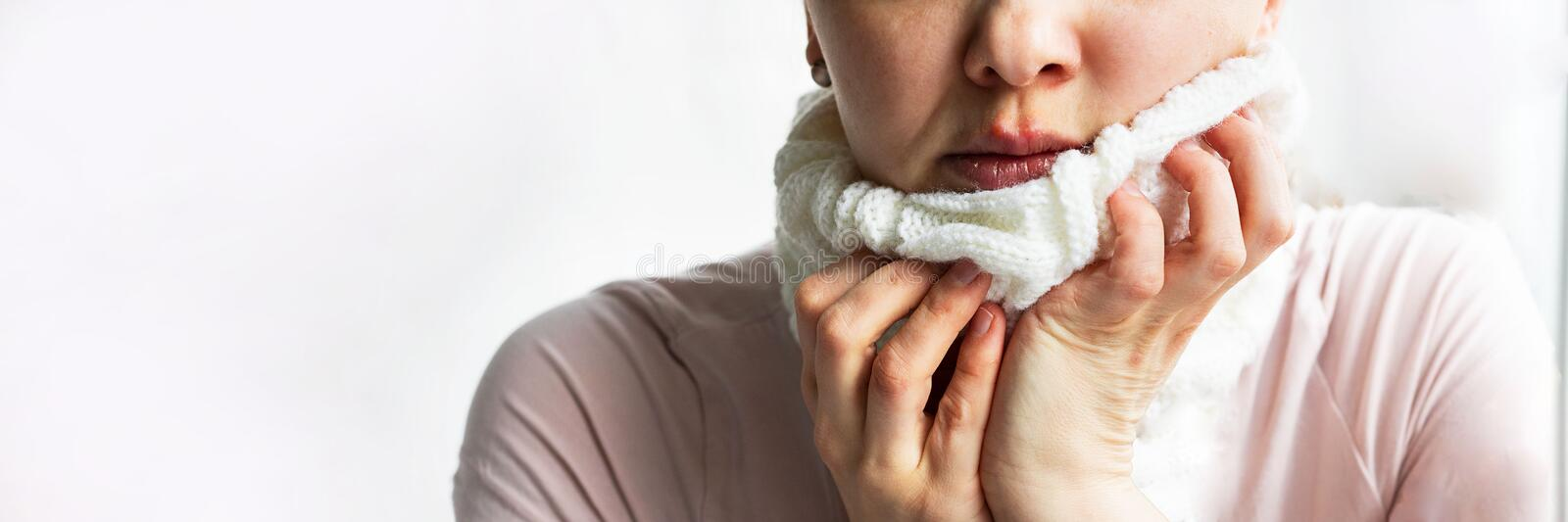 Lower part part of woman face with Red bubbles of virus herpes on her lips she tries to hide it under white knitted neckwarmer, royalty free stock photos