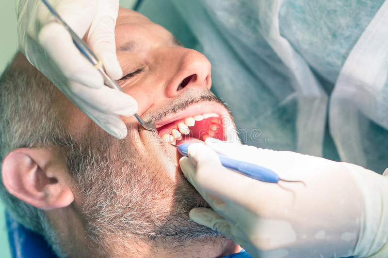 Male patient during dental hygiene at dentist office royalty free stock photos