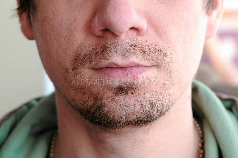 Herpes. Lip treatment. Close-up of the man`s lips with herpes. Front view. royalty free stock image