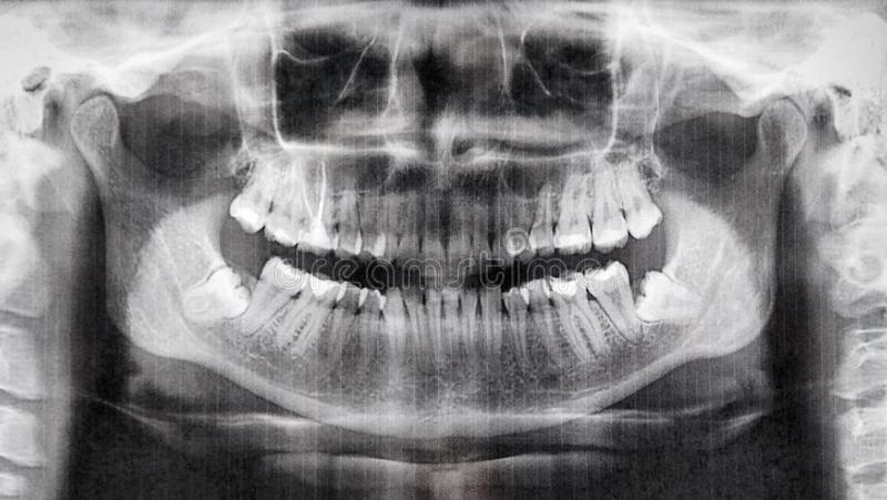 Panoramic x-ray view of teeth stock images