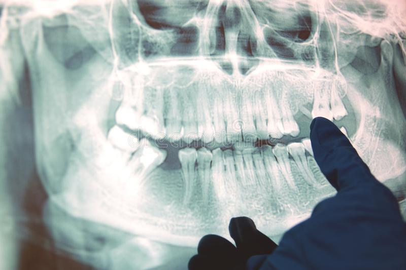 Panoramic x-ray image of teeth. Some teeth removed, problem with teeth stock images