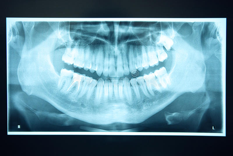 Panoramic Xray of teeth royalty free stock photography
