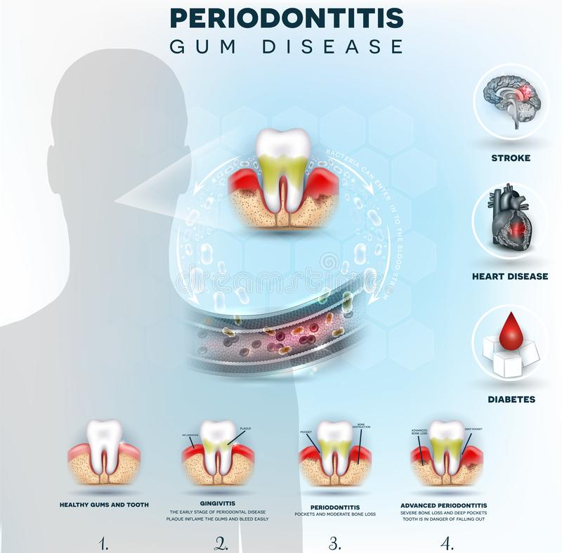 Periodontitis bacteria cause disease vector illustration