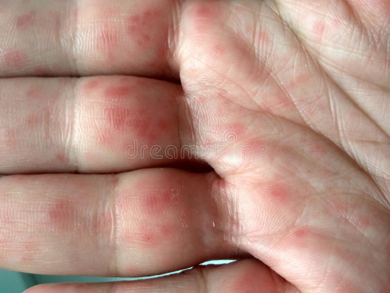 Realistic Coxsackie virus rash on hands. Coxsackievirus Coxsackie virus symptoms. Hands with rash. Red sports on the hand, palm and fingers stock photos