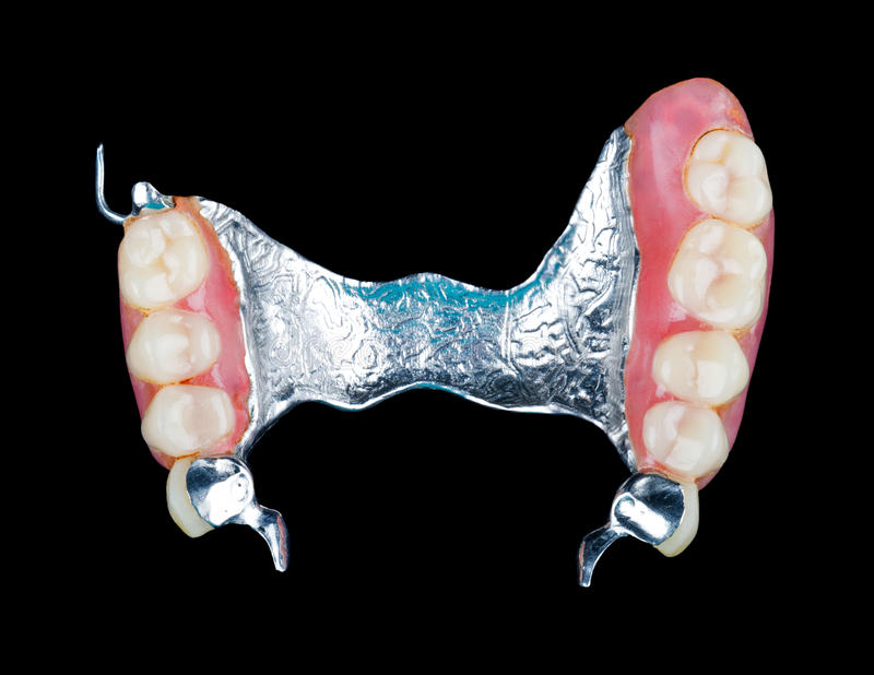 Removable dental prosthesis stock photography