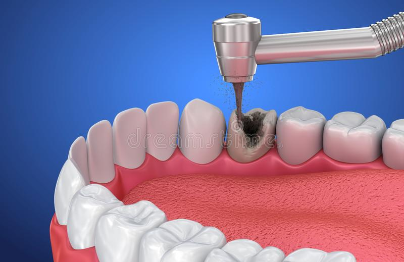 Removing the caries . Medically accurate tooth. 3D illustration royalty free illustration